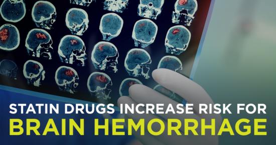 Statin Drugs Increase Risk for Brain Hemorrhage