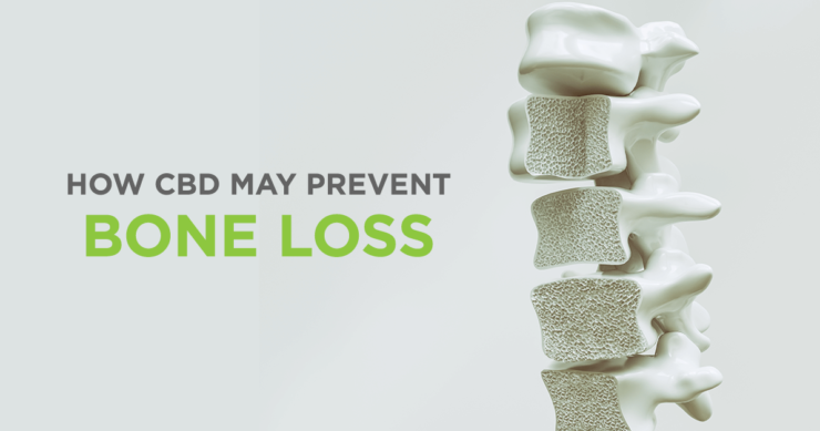 CBD and Osteoporosis – New Insights