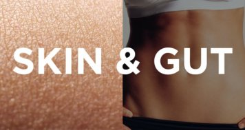 Psoriasis – A Gut Related Disorder